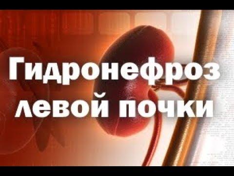 """Гидронефроз почки. Здоровье с ЦСТО """"Жемчужина Востока""""."""