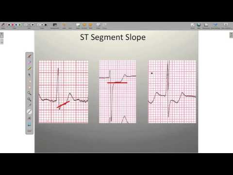 Effects of Ischemia on the ECG