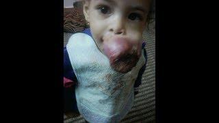 قصة الطفلة #مكة كاملة صوت وصورة . خطأ طبي أدى لاصابتها بورم  #لاتنسوا _الاعجاب_بالقناة