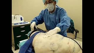 LIPEDEMA treatment using PowerX Liposuction by Dr  Lebowitz, Long Island,  NY by Lebowitz Plastic Surgery, Long Island Gynecomastia Center