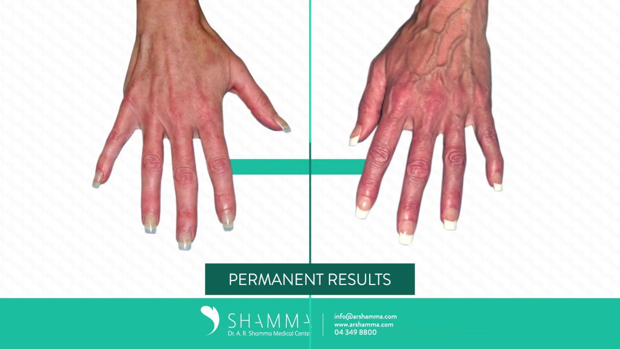 Hand Veins Unwanted Veins Or Bulging Veins Treatment In Dubai