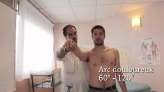 Examen d'une épaule douloureuse