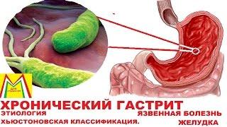 ХРОНИЧЕСКИЙ ГАСТРИТ и ЯЗВА ЖЕЛУДКА. Этиология. Классификация