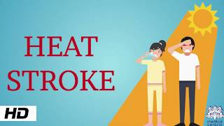 Heat Stroke, Causes, Signs and Symptoms, Diagnosis and Treatment.