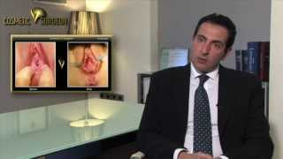 Repeat youtube video Hymenoplasty | Cosmetic V surgeon