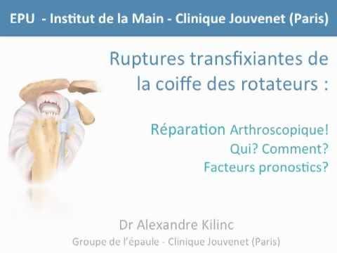 Chirurgie des tendons de l'épaule : Coiffe des rotateurs
