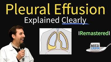 Pleural Effusions - Causes, Diagnosis, Symptoms, Treatment