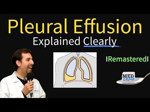 Pleural Effusions - Causes Diagnosis Symptoms Treatment
