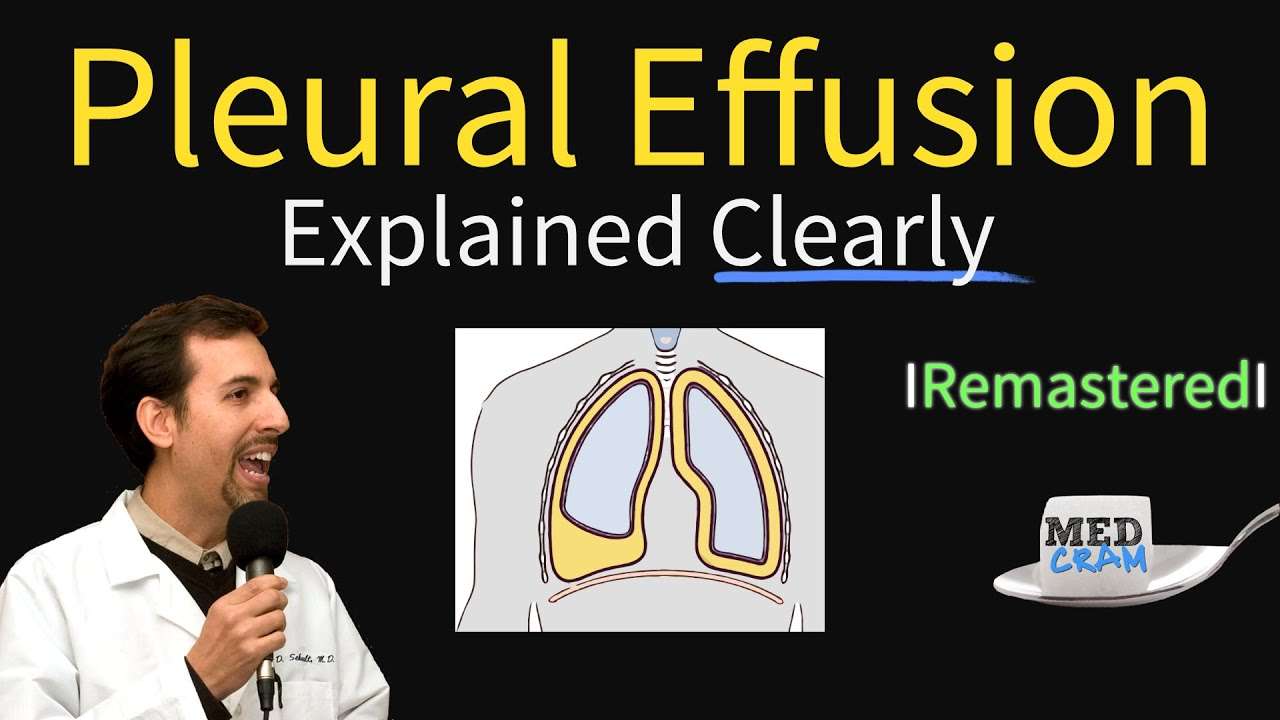 Pleural Effusions – Causes, Diagnosis, Symptoms, Treatment