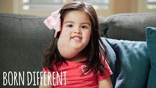 'Miracle' Girl With Tumour Awaits Groundbreaking Treatment | BORN DIFFERENT