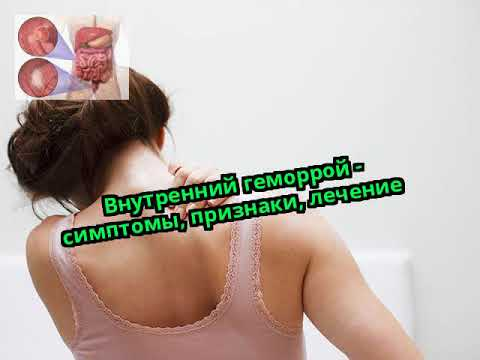 Внутренний геморрой - симптомы, признаки, лечение