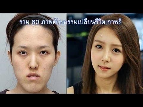 60 Hình Ảnh Trước Và Sau Khi Phẫu Thuật Thẩm Mỹ Hàn Quốc