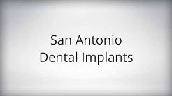 Cheap Dental Implants San Antonio TX (210) 463-4111