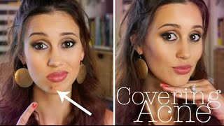 How to Cover a Pimple FLAWLESSLY!