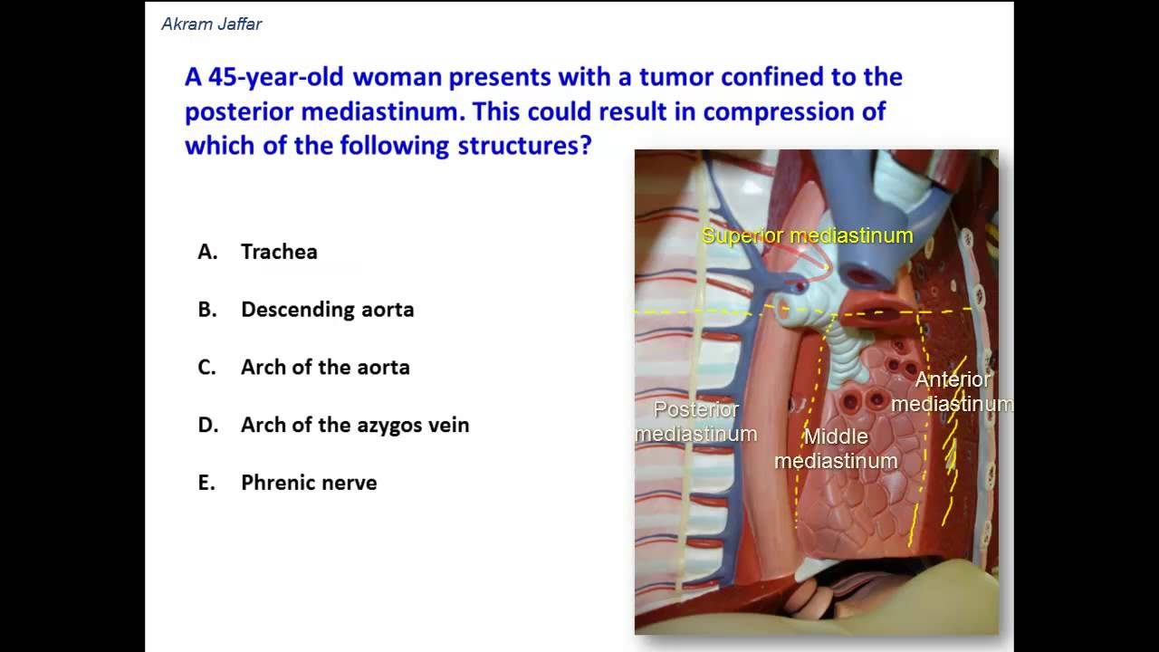 Divisions of the mediastinum and some of its contents - YouTube