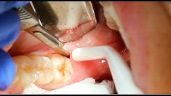 90 Second Non Invasive Wisdom Tooth Extraction Procedure