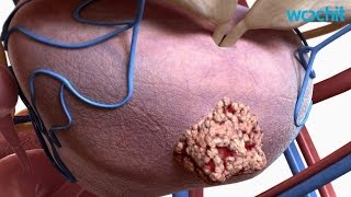 Study Shows It Really Doesn't Matter How You Treat Prostate Cancer