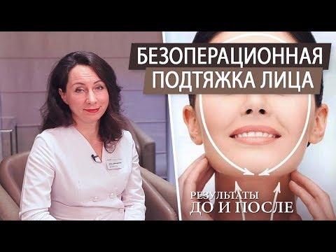 Безоперационная подтяжка лица. Альтера терапия. Как убрать брыли и второй подбородок