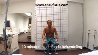 fascia activation slijmbeurs ontsteking