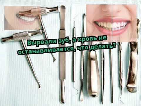 Как остановить кровь от вырванного зуба