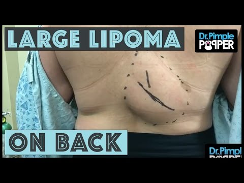 A Large Lipoma on Lower Mid Back!