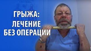 видео Межпозвонковая грыжа лечение