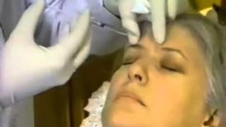 "BOTOX® Cosmetic and Perlane® Facelift in Toronto on TV Show ""The Ultimate Makeover"" Thumbnail"
