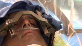 Deep Brain Stimulation Surgery to treat Parkinson's Disease at Mount Sinai Hospital