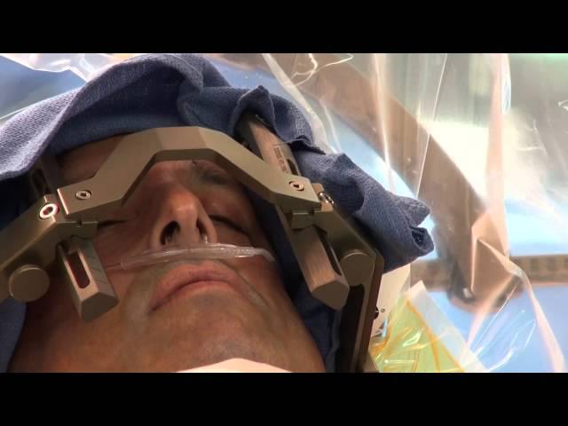 Deep Brain Stimulation Surgery to treat Parkinson's Disease at Mount Sinai Hospital
