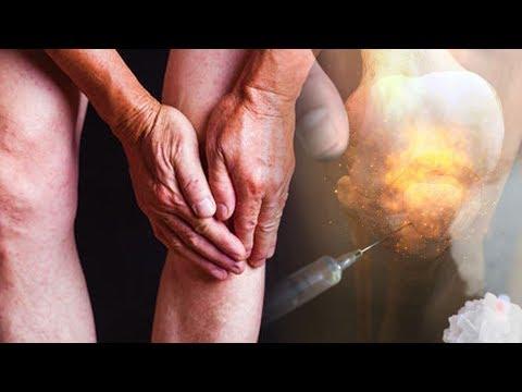 Лечение артрита. Облегчение боли при артрите.