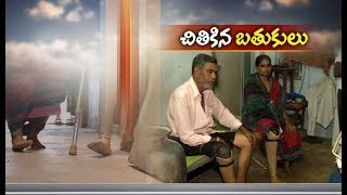 Pathetic Story  This Family Faces Severe Health Problem | Needs Financial Assistance | Krishana Dist