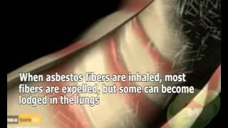 Symptoms of Diseases Linked to Asbestos Exposure