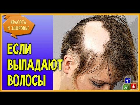 👩 Выпадают Волосы! А я - Женщина! Что делать, как лечить выпадение волос, чего организму не хватает?