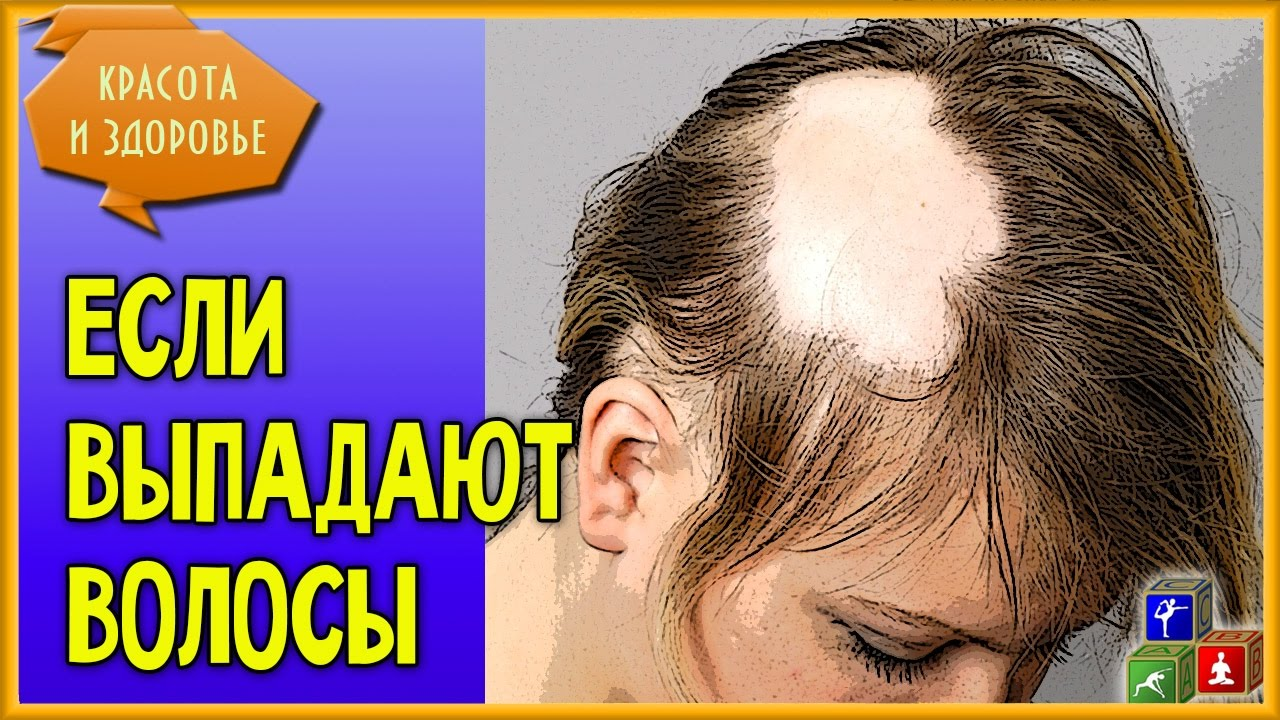 Какой шампунь самый лучший от выпадений волос