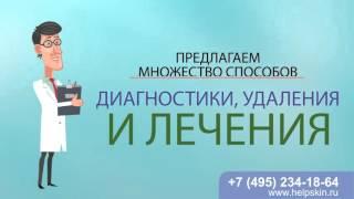 Удаление и лечение кондилом в клинике на Таганке(, 2016-03-18T15:18:22.000Z)