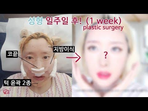 성형 수술 일주일 후기 !! │ 턱 안면윤곽 2종, 지방이식, 코끝 w. 갸름한 성형외과 plastic surgery in korea