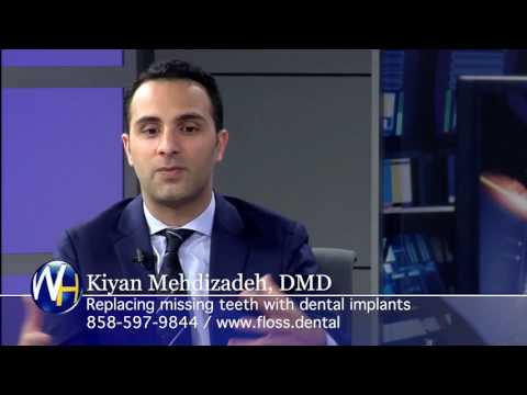 Replacing Missing Teeth with Dental Implants with San Diego Dentist Dr. Mehdizadeh