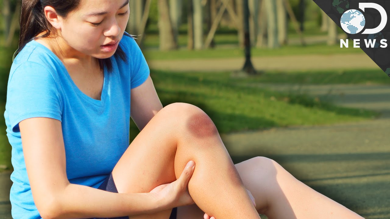 Download Why Do Some People Bruise So Easily?