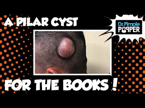 Best cyst popping videos of 2018 - INSIDER