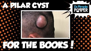 A Pilar Cyst for the Books