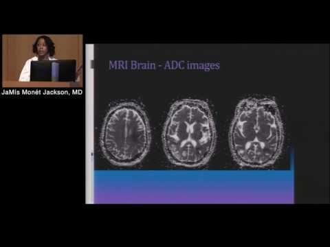 Neuroradiology: Basic Interpretation Of CT & MRI (JaMís Jackson, MD)