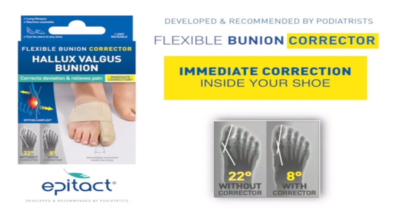 small resolution of diagram of bunion