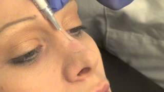 Моделирование носа препаратом для контурной пластики Radiesse