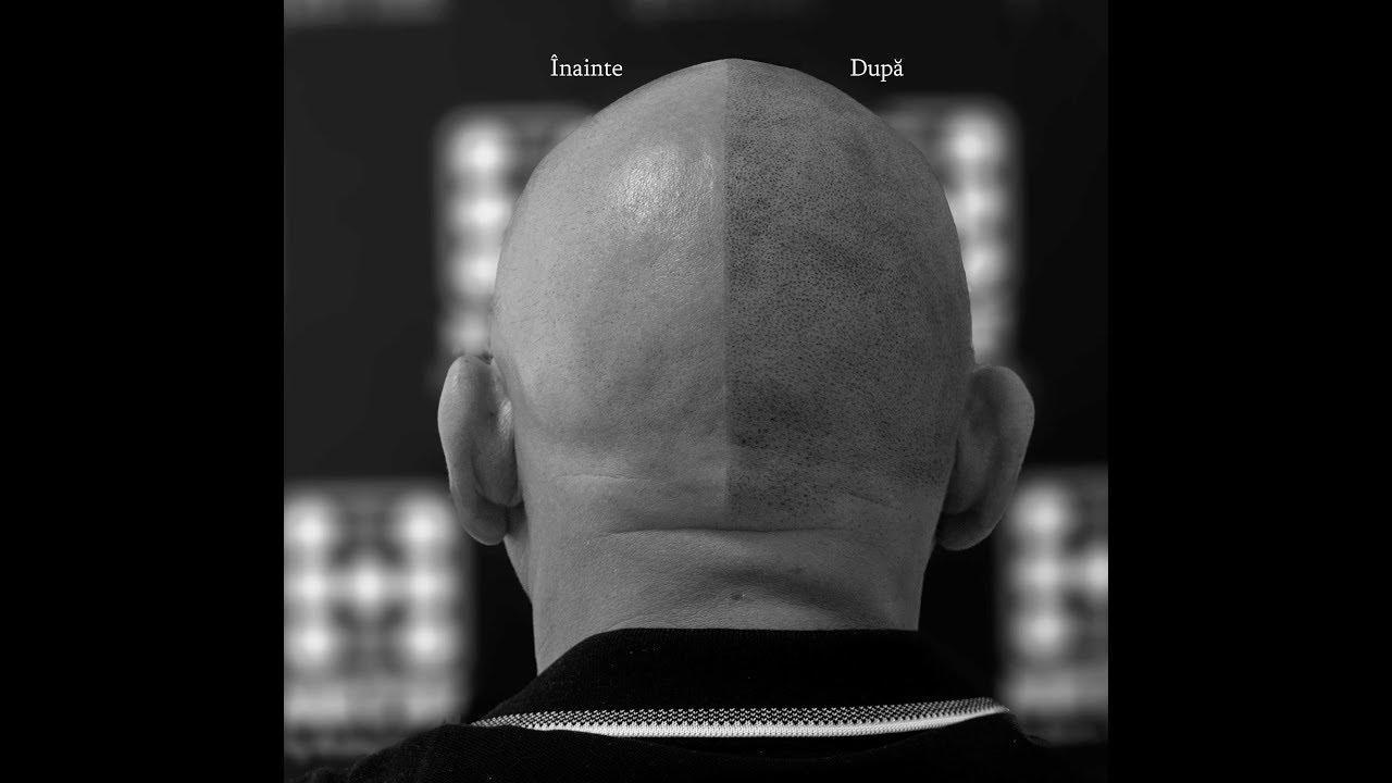 Tratamentul alopeciei viermilor