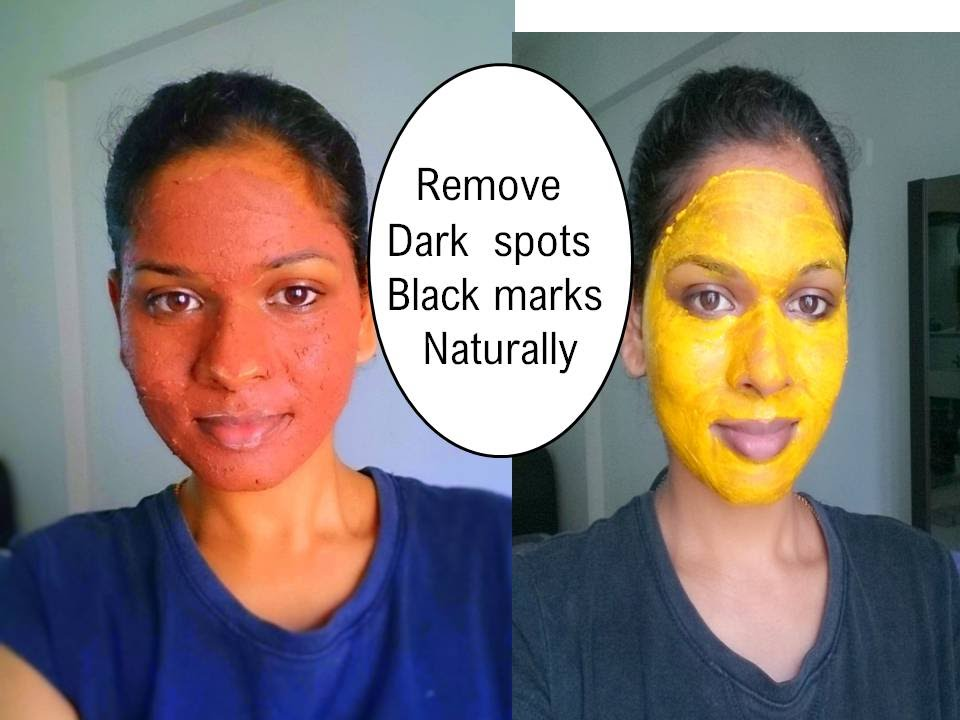 how to clear dark spots on face from acne