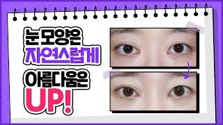 자연스러운 눈매, 아름다움까지 UP ! ㅣ앞트임복원ㅣ신…