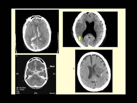 Stroke Syndromes - CRASH! Medical Review Series