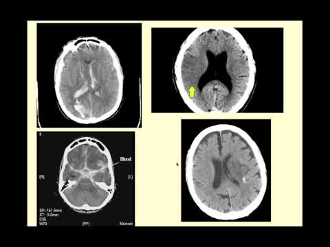 Stroke Syndromes - CRASH! Medical Review Series from YouTube · Duration:  30 minutes 33 seconds