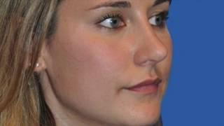 Dr. Waleed Ezzat | Before & After Video: Rhinoplasty Case #5