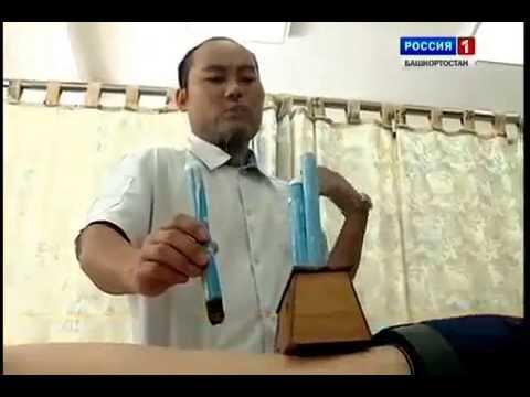 Новость! Моксотерапия- эффективный метод лечения!. Центр тибетской медицины.